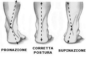 cos'è il piede prono